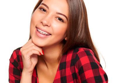 niña_sonriendo_ortodoncia_bracket-center