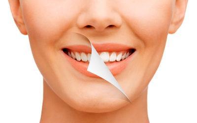 Limpieza o Blanqueamiento dental ¿Cuál es el indicado para ti?