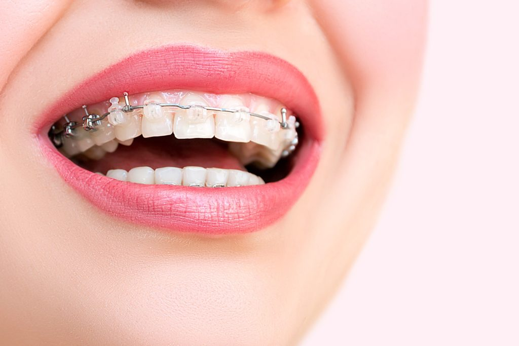 brackets_casi_imperceptibles_brackets_center